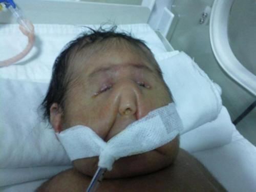 Extremely Rare Syndrome Pseudotrisomy 13 Davutoglu