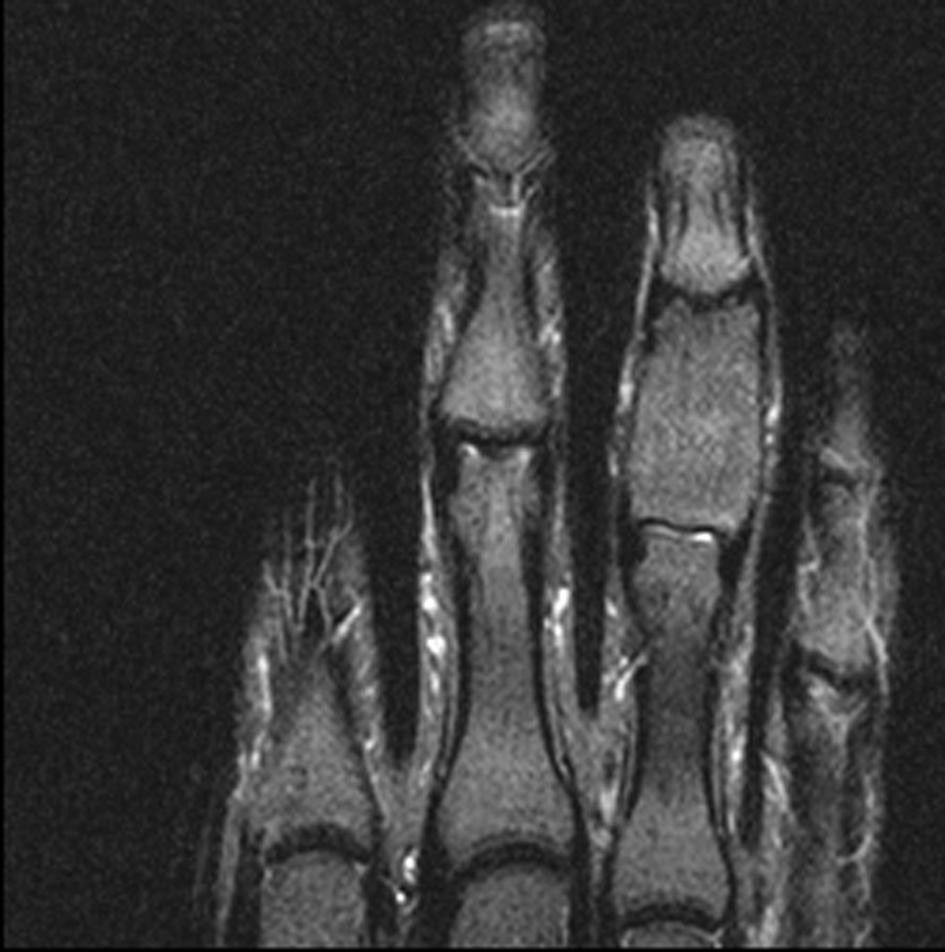 Monostotic Fibrous Dysplasia Of The Middle Phalanx Of The Hand