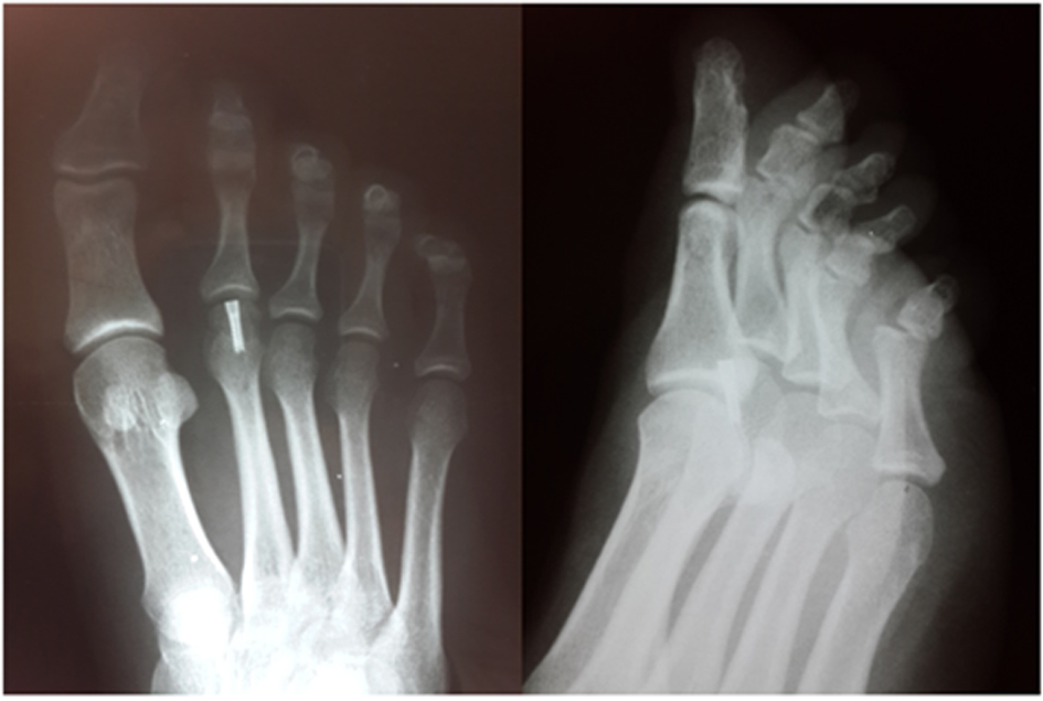 an unusual osteochondral articular surface fracture of