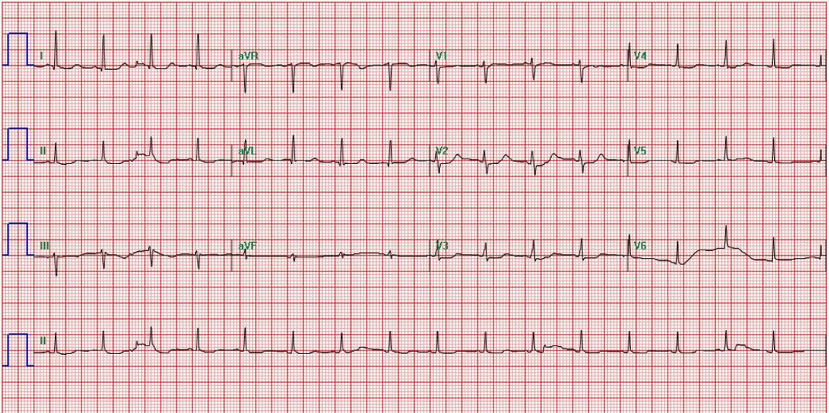 ECG showing resolution of tall tented T waves.  sc 1 st  Journal of Medical Cases & Recognition and Treatment of Potentially Fatal Hyperkalemia in the ...