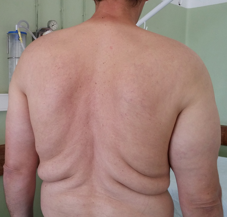 Multiple Symmetrical Lipomatosis: Madelung's Disease | Carvalho