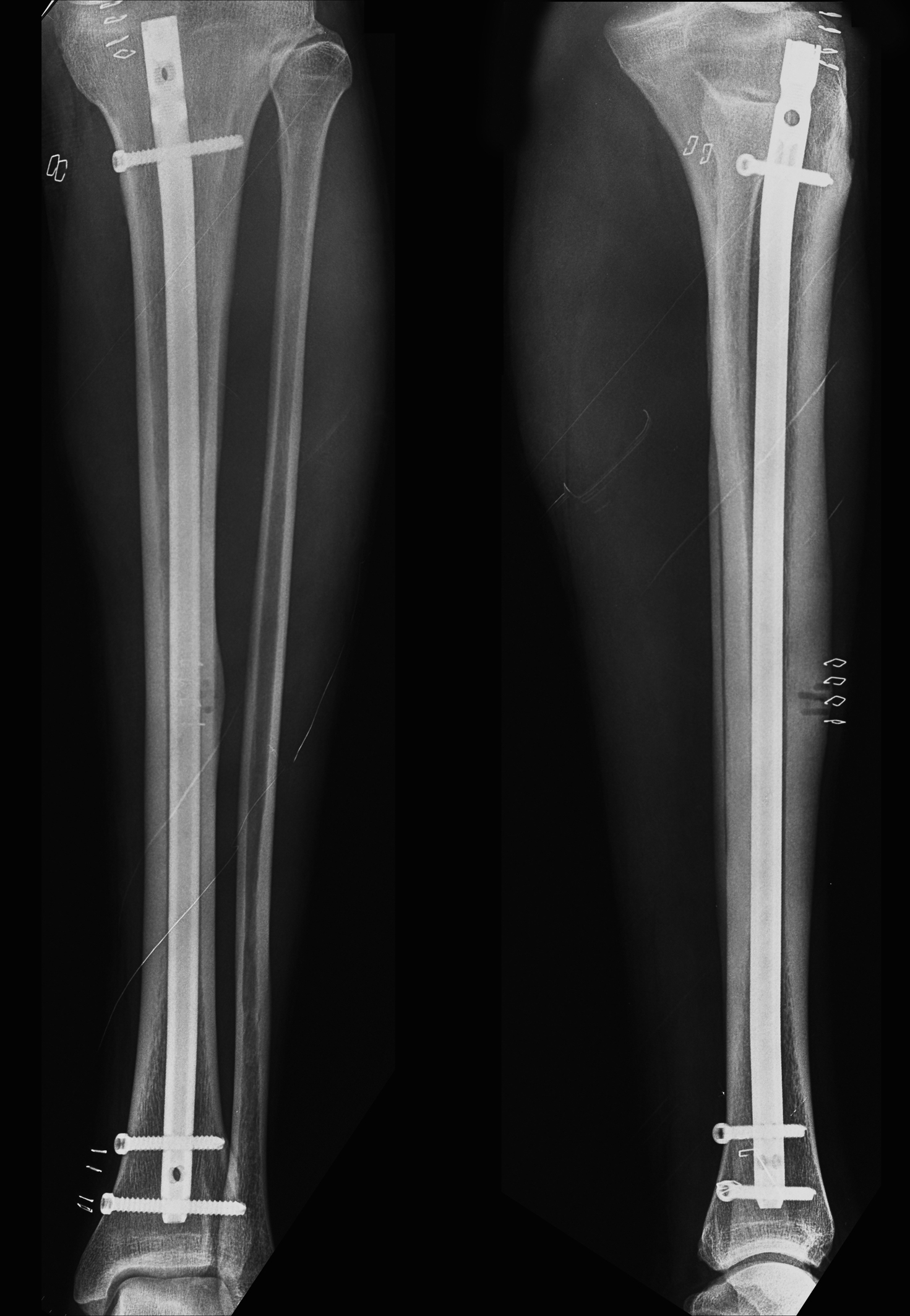 Anterior Tibial Cortex Stress Fracture In A High Demand Professional Soccer Player Gigis Journal Of Medical Cases