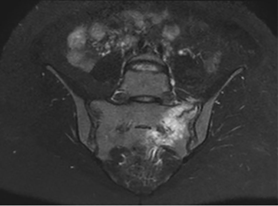 Sneezing A Rare Cause Of Sacral Insufficiency Fracture In A Young