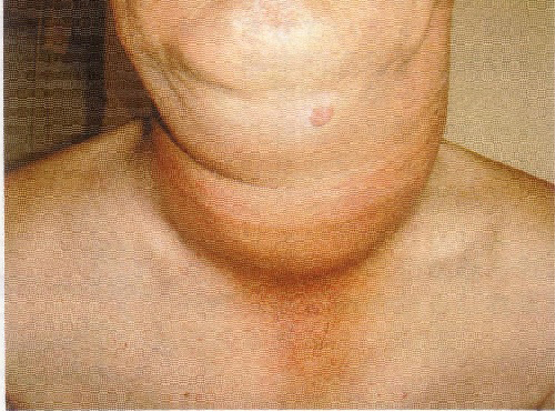 Primary Thyroid Lymphoma as A Manifestation of Rapidly