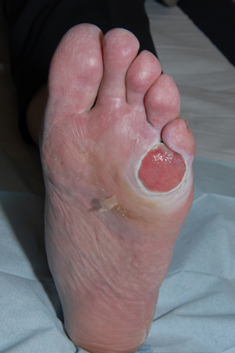 Amelanotic Melanoma Presenting as a Neuropathic Ulcer in a ...