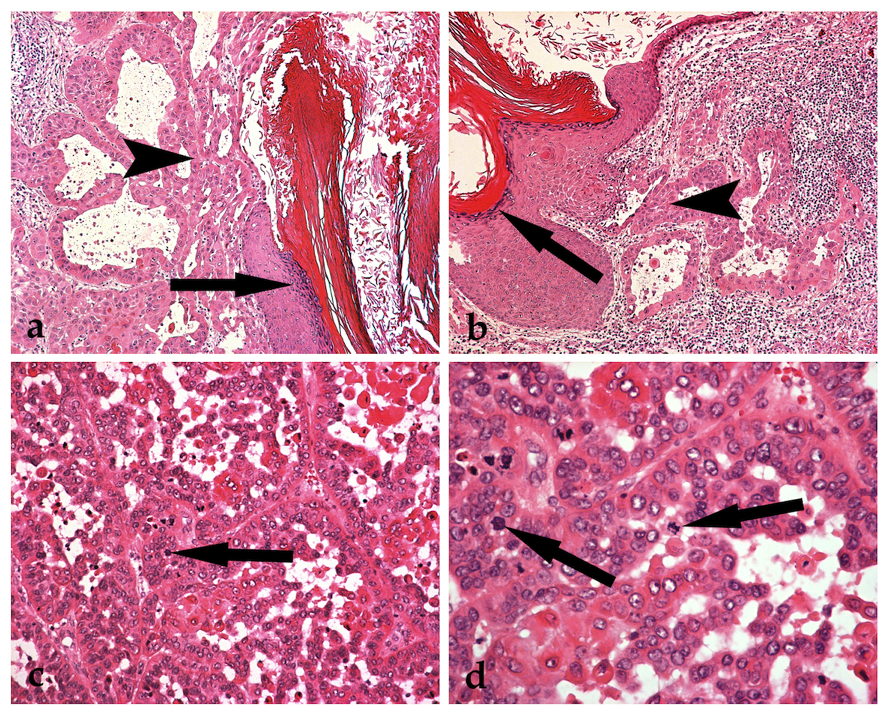 Malignant Transformation in a Typical Epidermal Cutaneous