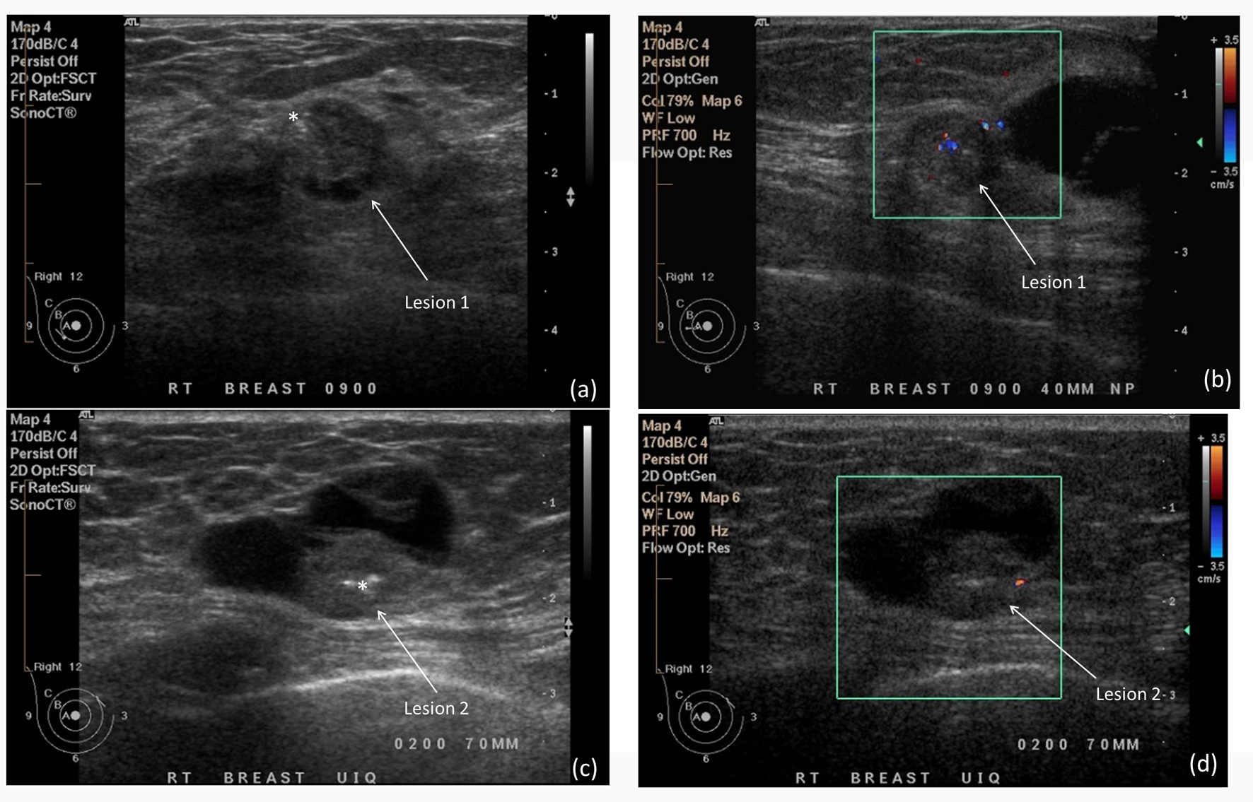 Unusual Mammographic And Ultrasound Findings In A Patient
