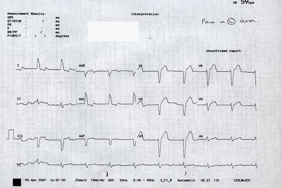 A Case of Chest Pain, Abnormal Electrocardiogram and Skin Lesions
